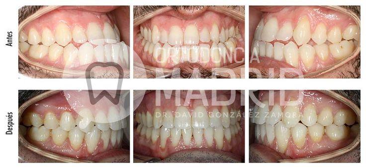 Ortodoncia y Cirugía Ortognática: Clase III esquelética con asimetría facial tratada con sistema Damon y cirugía ortognática