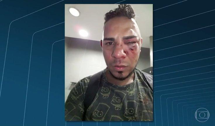 Vítima de homofobia, jovem é agredido dentro de estação do BRT no Rio