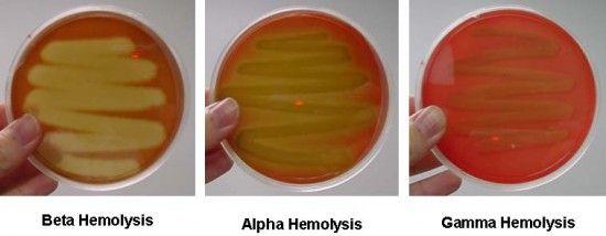 Haemolysis on agar.  Common types of Haemolysis.    Alpha - Streptococcus pneumoniae/Strep Viridans.   Beta - Golden Haemolysis around bacterial colonies. Distinguish between Group A Strep with Bacitracin pill (Sensitive) zone of inhibition.