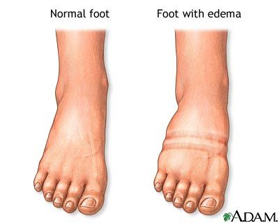 """Edema: swelling of a part of the body in response to an injury or inflammation; occurs when small blood vessels become """"leaky"""" and release fluid into nearby tissues.  Edema is a normal response of the body due to allergies, low albumin, and different diseases.  It can be treated by treating the underlying cause of edema."""