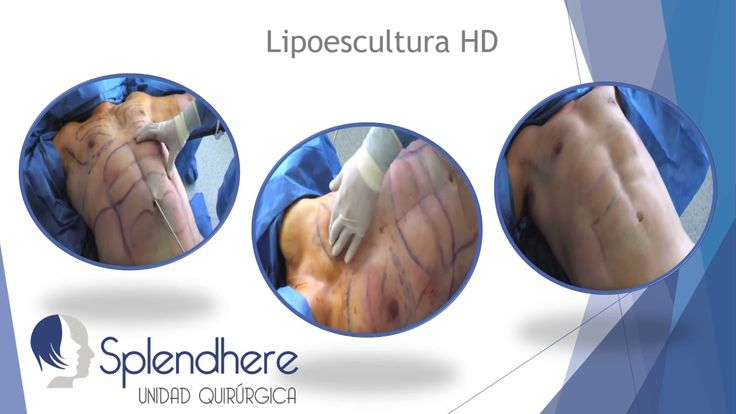 Liposuccion HD - Liposuction HD
