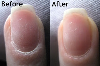 How to get your nails back to healthy after wearing acrylics. I might need this someday..