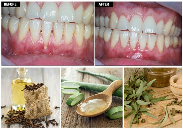 Grow back your receding gums with the help of these