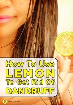 How To Use Lemon To Get Rid Of Dandruff: Lemon juice is proven to get rid of dandruff naturally. It's citric acid helps you fight dandruff from the roots of the hair follicles. Here are a few great techniques for removing dandruff with lemon. To known more on how to remove dandruff choose one of the following methods that is most suitable for you.