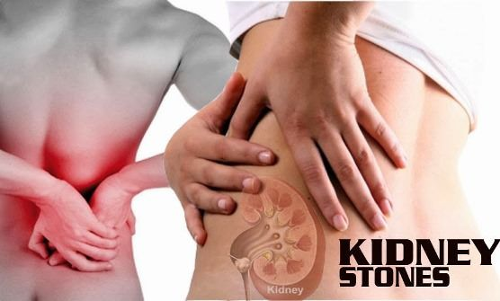 How to get rid of kidney stones? Kidney stones form when small gems form in the kidney. Usually, these gems, head out from the kidney to the urinary t...