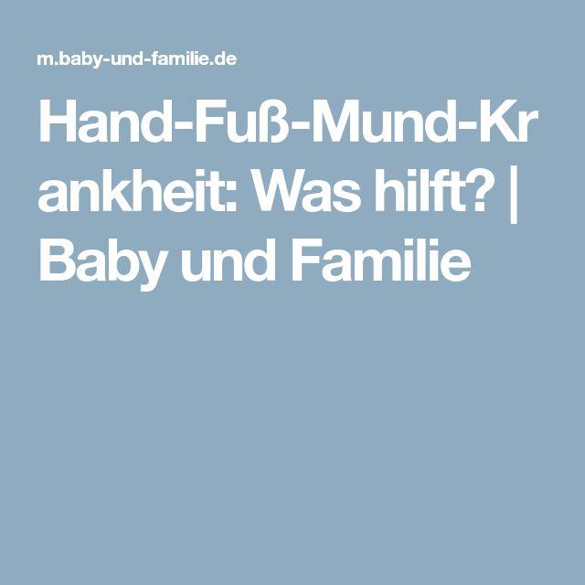 Hand-Fuß-Mund-Krankheit: Was hilft? | Baby und Familie