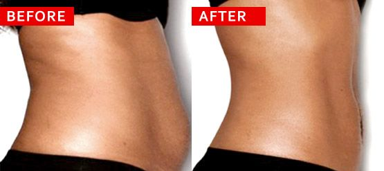Non-surgical Laser Lipo yields great results with no pain, non-invasive methods with no down time required. Contact http://www.oasislaserlipo.co.za/