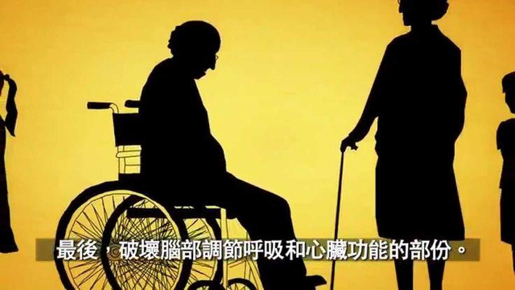 認識阿茲海默症(失智症、老人痴呆症)