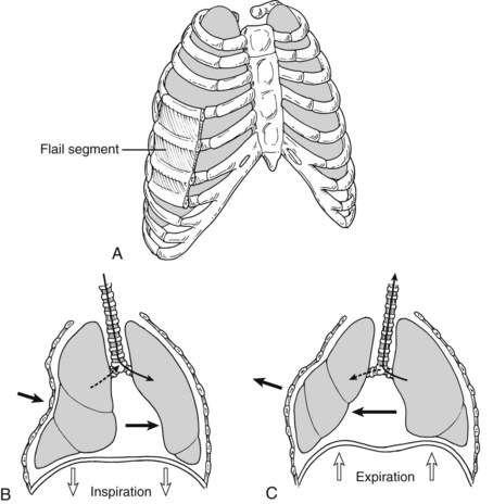 Image result schfor define flail chest