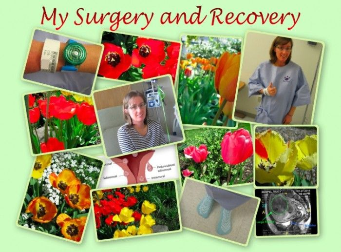 In part 2 of My Uterine Fibroids Journey - My Surgery and Recovery, I share my experience with fibroid surgery. After much research and prayer, I chose to have a myomectomy. The pain of recovery has been worth it!