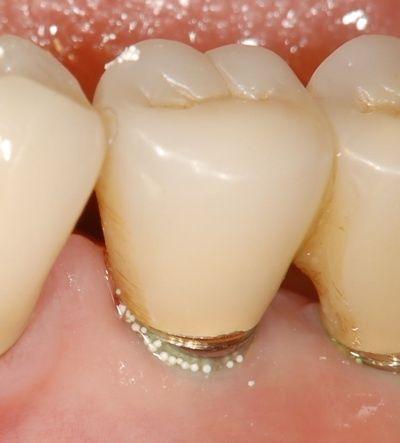 誰もが知っている歯磨き粉が歯茎をボロボロにする。メーカーが隠す歯磨き粉の悪夢。 |腫れに歯科医師が気づかず、ツブツブ入りの歯磨き粉をそのまま使用していた場合は炎症は進み、歯肉がどんどん腫れ、歯がグラグラになる可能性も(ナチュナルクリニックOSAKA 先田医院長提供)
