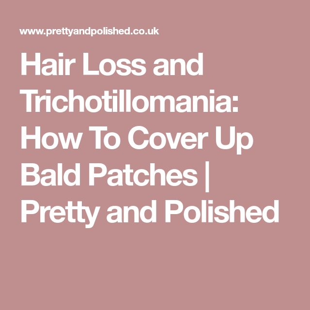 Hair Loss and Trichotillomania: How To Cover Up Bald Patches | Pretty and Polished