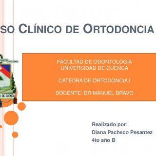 CASO CLÍNICO DE ORTODONCIA Realizado por: Diana Pacheco Pesantez 4to año B FACULTAD DE ODONTOLOGIA UNIVERSIDAD DE CUENCA CATEDRA DE ORTODONCIA I DOCENTE: DR. http://slidehot.com/resources/caso-clinico-de-ortodoncia-universidad-de-cuenca-diana-pacheco.20411/