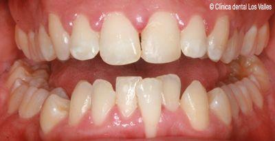 ¿Problemas de mordida y apiñamiento? ¡Descubre lo que el tratamiento de ortodoncia invisible Invisalign puede hacer por ti!