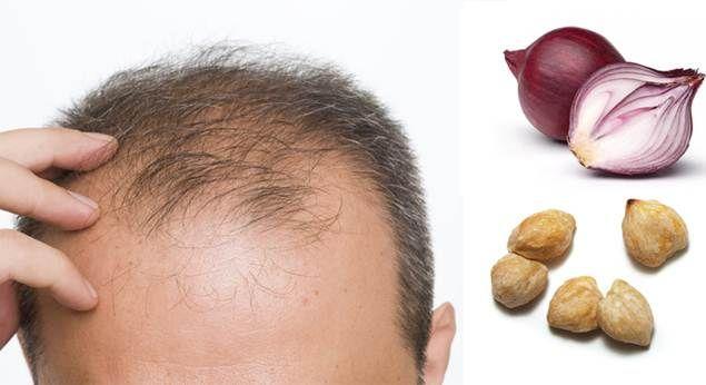 10 Obat Penumbuh Rambut Alami Dengan cara Cepat