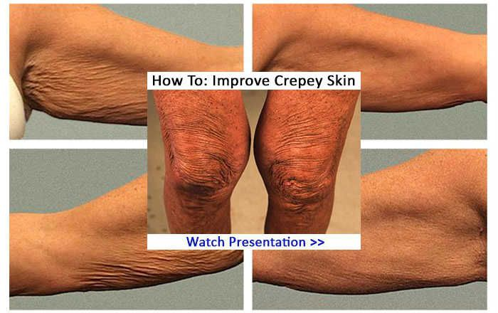 What causes crepey skin? A deep into how to get rid of crepey skin, on face, neck, upper arms, legs, naturally, home remedies, causes. ... I tried a few natural crepey skin remedies that I think really worked for me. These tips helped significantly get ride of crepey skin on my face - The most impressive results were on my neck and chest..... Watch Video Below