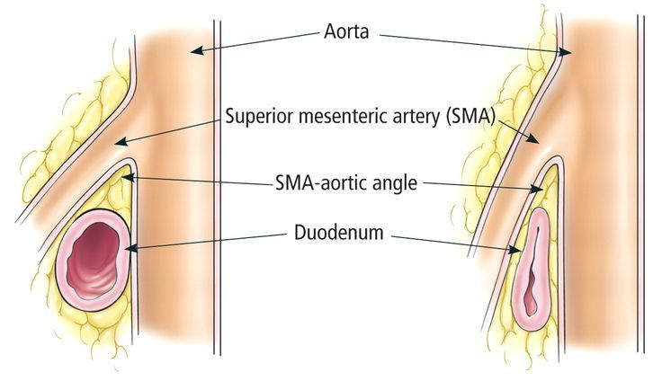superior mesenteric artery syndrome