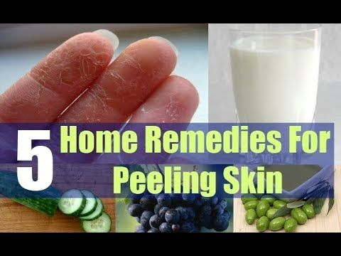 5 Ways to Get Rid of Your Peeling Fingertips.  #HomeRemedies to Get Rid of Peeling Skin on Hands, Palms and Finger Tips. The skin around the palms and fingers is very much delicate and sensitive so it is common that those areas get peeled. If you never try to keep your hands in the proper care then you may suffer this problem of peeling fingertips. It is embarrassing and cause so much discomfort and worry.  Many causes might affect this problem but some of them are dry skin, eczema, sunburn…