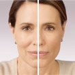 Look at the difference that Juvederm can make. Visit us at www.advanced-smiles. for a free consultation
