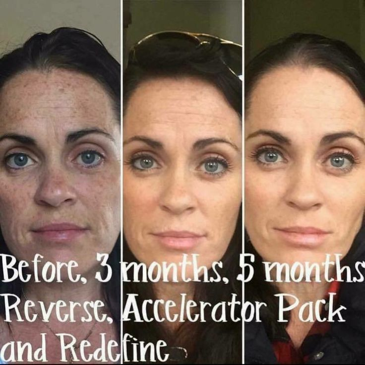 "Check out Melissa's ✨STUNNING✨ results using Rodan + Fields Award Winning skincare!!! Here's what she had to say: ""Who's ready to start seeing RESULTS? This is not a magic potion but with consistency you will see REAL RESULTS!! I've said it before, I wouldn't promote something I don't believe in and have not tried and tested myself! Well, I have and I BELIEVE!!! Why not take a leap and believe for yourself?!"""