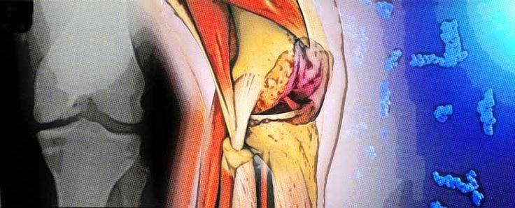 Características de las infiltraciones en la rodilla con acido hialurónico  http://www.infotopo.com/salud/tratamiento/caracteristicas-de-las-infiltraciones-en-la-rodilla-con-acido-hialuronico