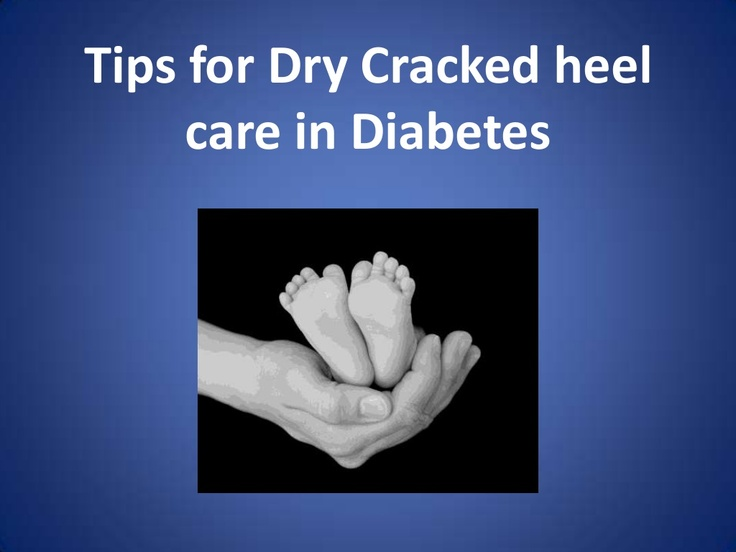 dry-cracked-heel-care-in-diabetes-tips by Savitha  via Slideshare