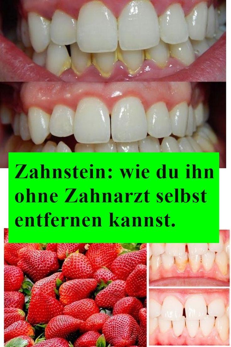 Zahnstein: wie du ihn ohne Zahnarzt selbst entfernen kannst. | drndex.com