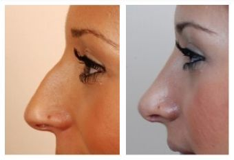 http://www.bestnosejob.com/my-nose-job-experience.html/arched-nose-job-before-and-after