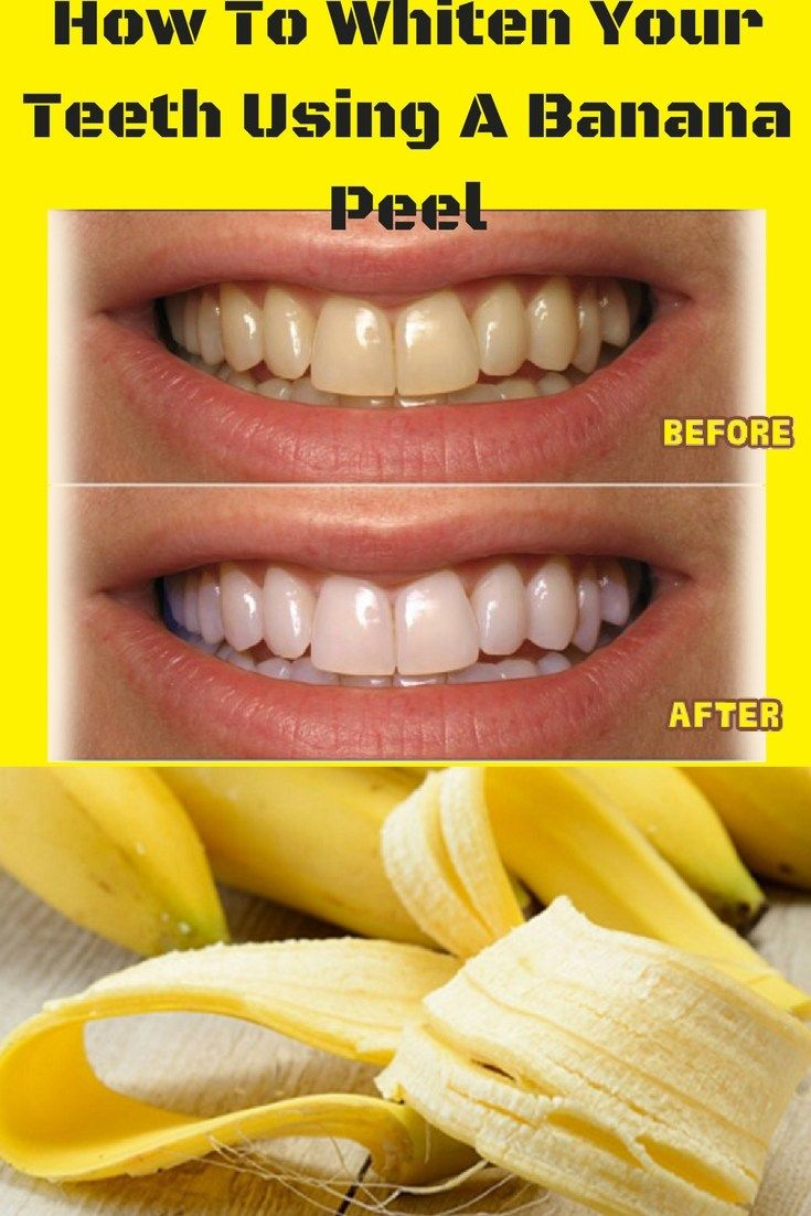 2015 LIKES   A perfect look is something that every woman wishes for. But it is definitely completed by a beautiful smile, which is quite difficult to get, no matter how many procedures or