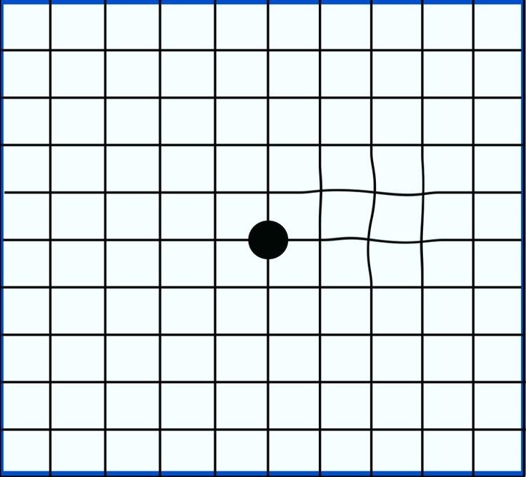 An Amsler grid showing mild distortion. Grid, Loose lips