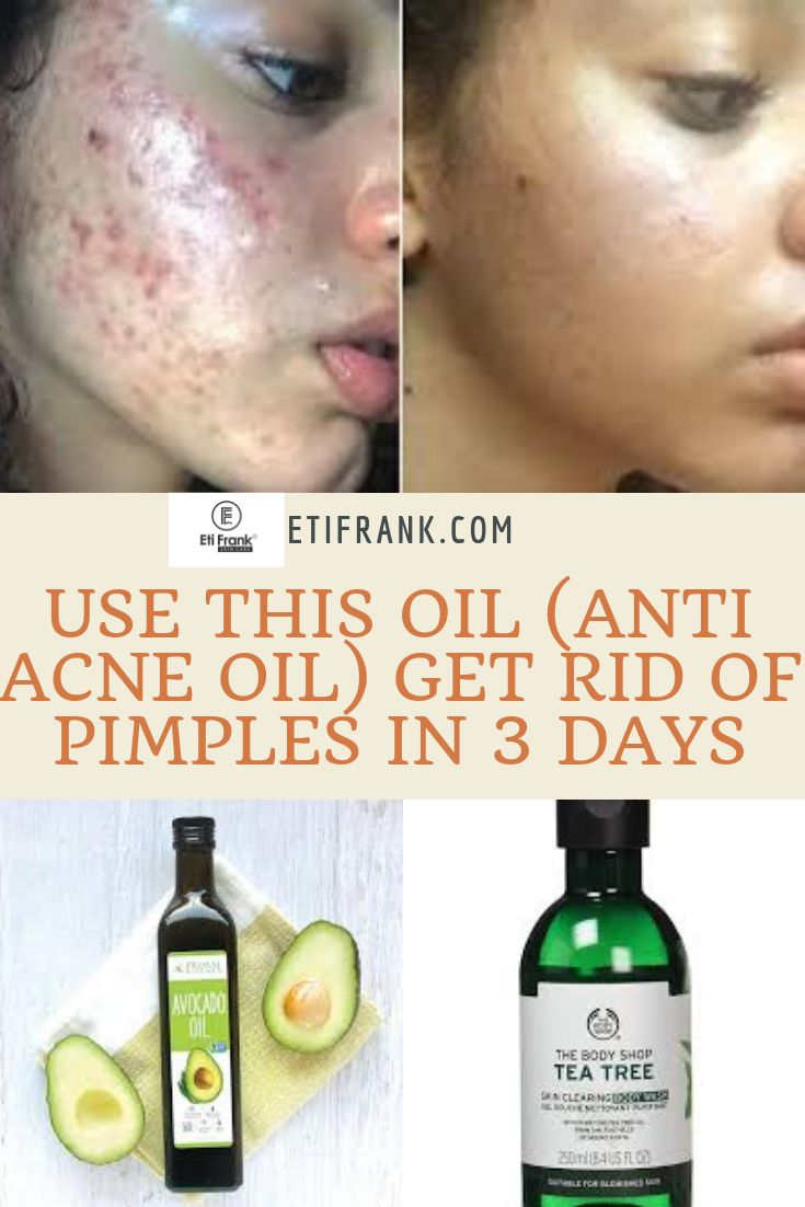 USE THIS OIL (ANTI ACNE OIL) GET RID OF PIMPLES IN 3 DAYS
