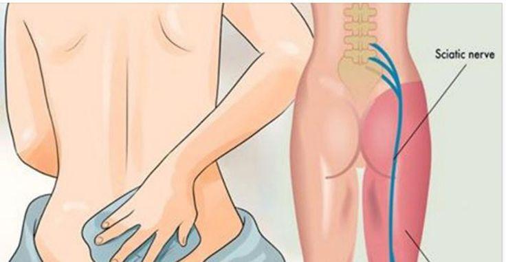 De heupzenuw begint bij je onderrug en loopt door tot onder in de voet en is daarmee een van de grootste zenuwen in je lichaam.