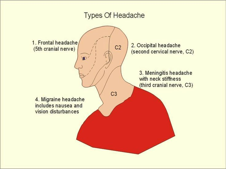 the definition and different types of headaches What are the different types of headaches we ask the experts and find out that the different types of headaches are brought on by different triggers.