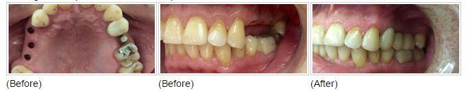 Missing #teeth replaced with #Dental Implants & metal free #Crowns.