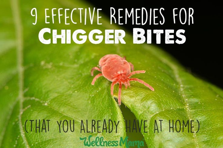 9 Effective Remedies for Chigger Bites (You Have At Home) | Wellness Mama | Bloglovin'