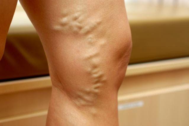 Vindeca Varicele fara Operatie cu aceste Super-Tratamente Naturale   Secretele