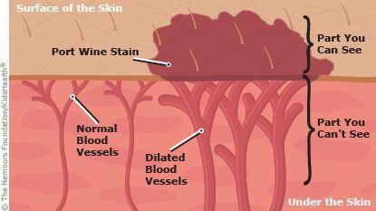port wine stain illustration