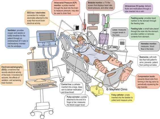 Image result for icu patient