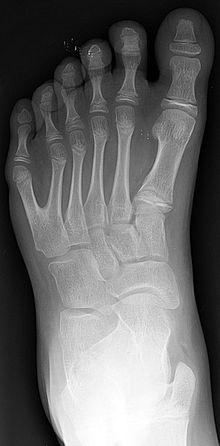 Polydactyly (extra toe). Visítenos en la Clínica de Artrosis y Osteoporosis www.clinicaartrosis.com PBX: 6836020, Teléfono Movil: 317-5905407 en Bogotá - Colombia.