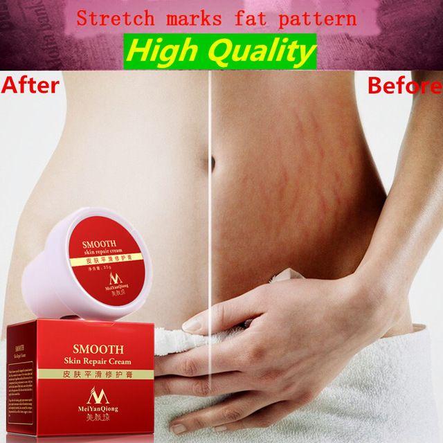 MeiYanQiong Драгоценные Кожи Крем Для Тела удаления растяжек и рубцов удаление мощный послеродовой ожирение беременность крем