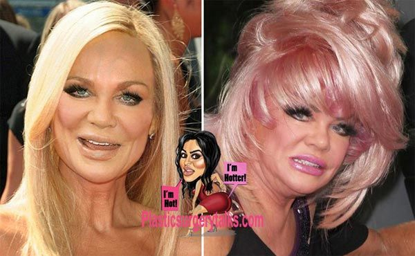 Jan Crouch Plastic Surgery Before & After - http://plasticsurgerytalks.com/jan-crouch-plastic-surgery/