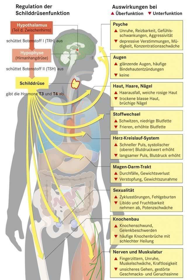 Subklinische Hypothyreose und Gewichtsverlust