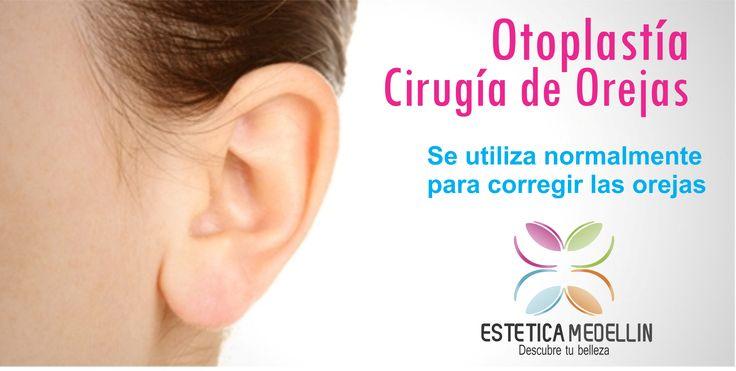 Otoplastía ó Cirugía de Orejas Se utiliza normalmente para corregir las orejas. Pide ya tu cita de valoración #EsteticaMedellin