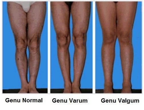 Normal Knees