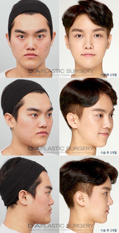 [Image: 0b8fa6604630153071baa79d20161741--korean...plasty.jpg]