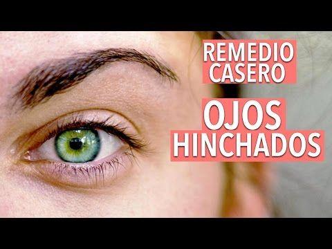 COMO QUITAR LOS OJOS HINCHADOS, OJERAS Y BOLSAS EN LOS OJOS YASMANY - YouTube