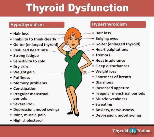 Thyroid disfunction | Thyroid Madess | Pinterest | Thyroid ...