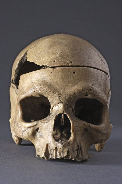 Rare and Interesting Ancient Prehistoric 'Classic' Neanderthal Human Skull (80 BC to 35 European)