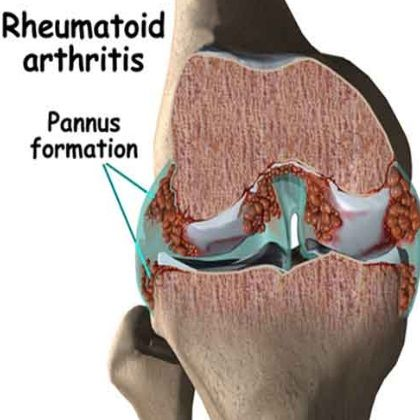 How To Identify Rheumatoid Arthritis