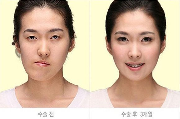Korean Plastic Surgery Jaw Surgery | Crazy Plastic Surgery ...